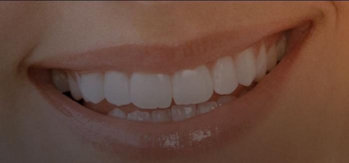 Liberty Seguros lança seguro dentário com a Médis