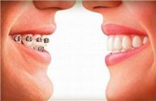 seguros dentarios ambíguos